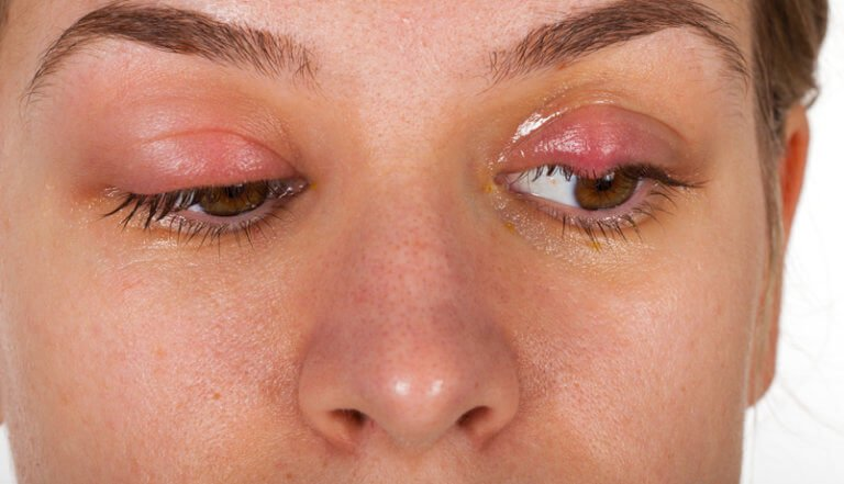 What is the Difference Between a  Chalazion and a Stye?
